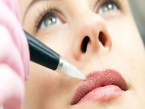Dermopigmentazione