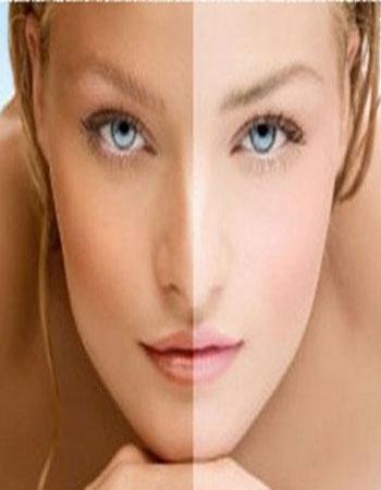 Depigmentazione
